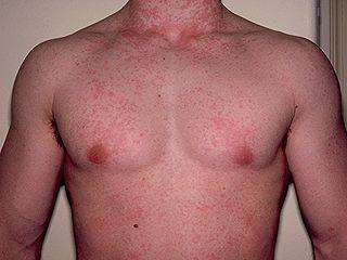 Mononucleosis Symptoms